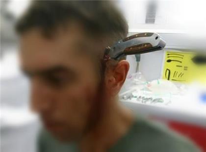 hombre con cuchillo en la cabeza