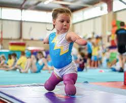 Niña británica de cinco años con las extremidades amputadas sorprende como gimnasta