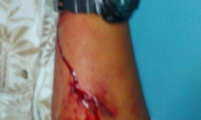 Herido con Hacha