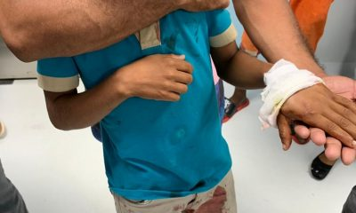 Estudiante herido de bala