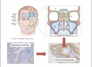 investigadores-hallan-una-alteracion-genetica-que-muestra-una-nueva-forma-de-tratar-tumores-de-fosas-nasales