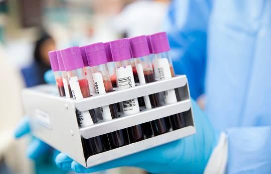 Estudio detecta diferencias en sangre de pacientes graves y leves de COVID-19